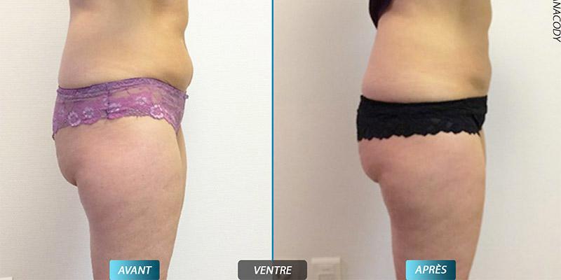 soin anti graisse pour les femmes par cryolipolyse
