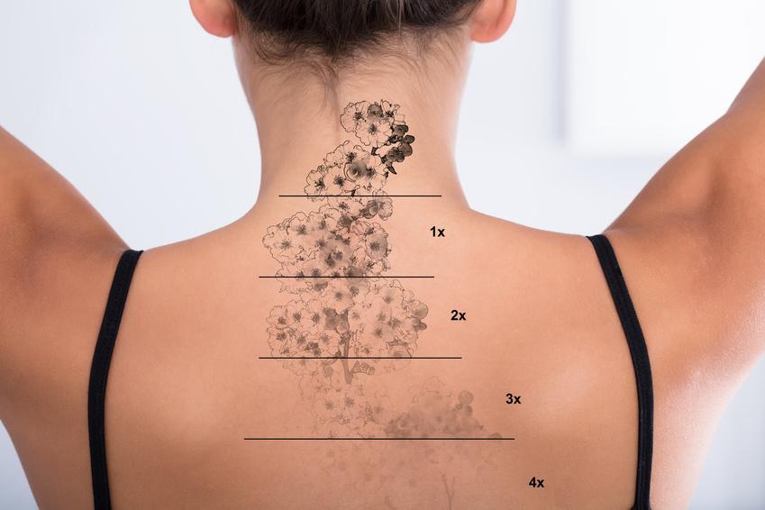 effacer tatouage par dermatologue Bordeaux