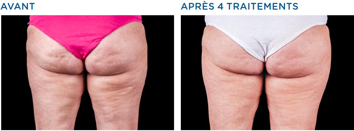 solution à Bordeaux pour éliminer la cellulite