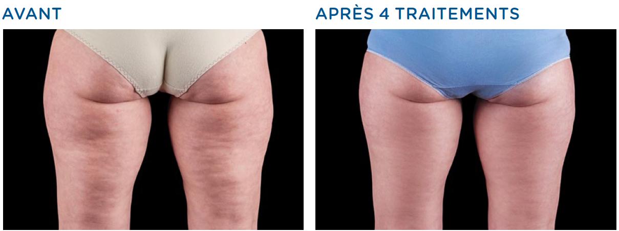 traitement anti cellulite avant après à Bordeaux
