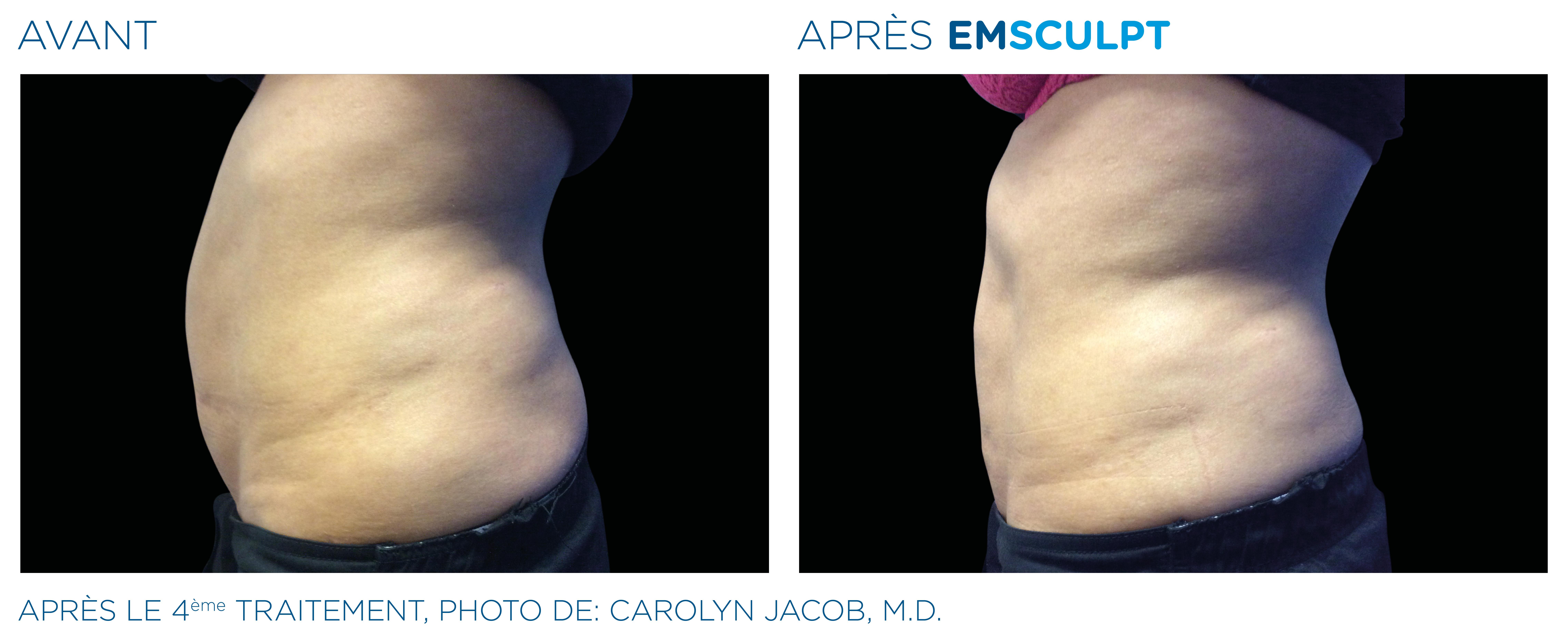 Emsculpt_PIC_Ba-card-female-abdomen-006_FR100