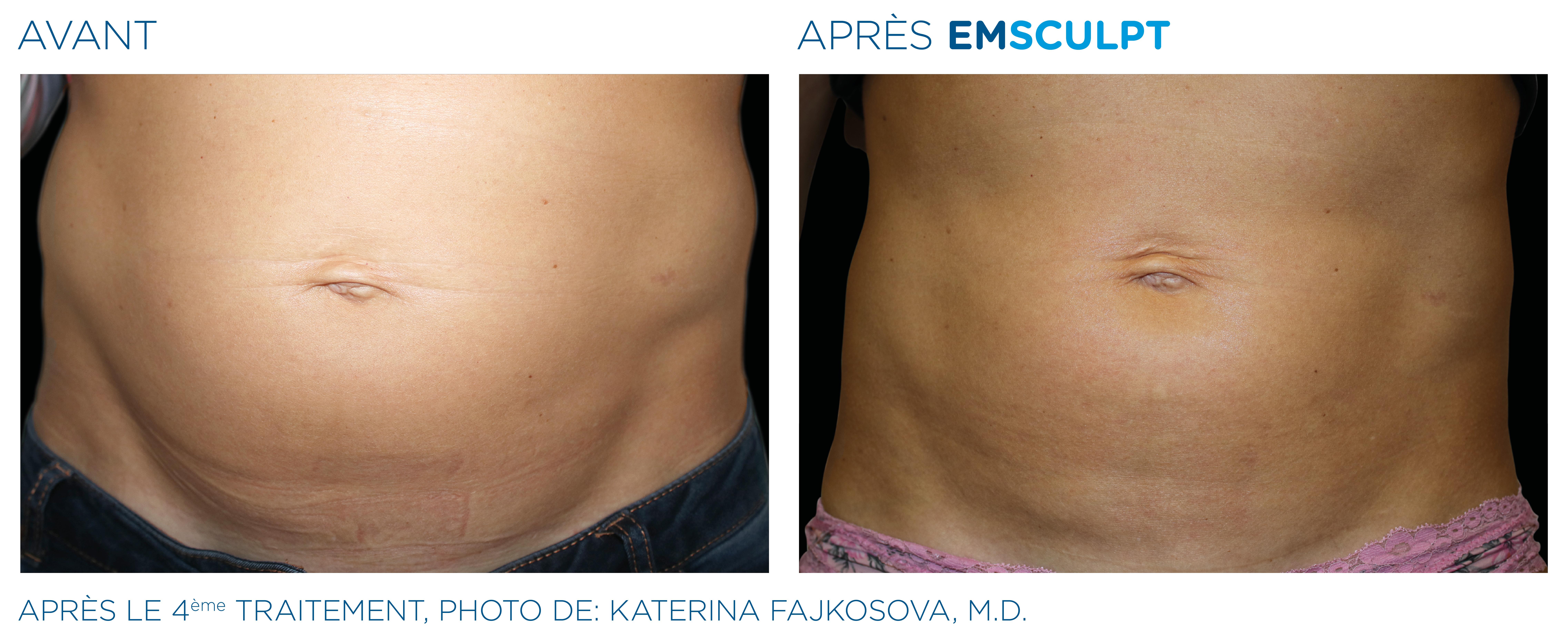 Emsculpt_PIC_Ba-card-female-abdomen-008_FR100