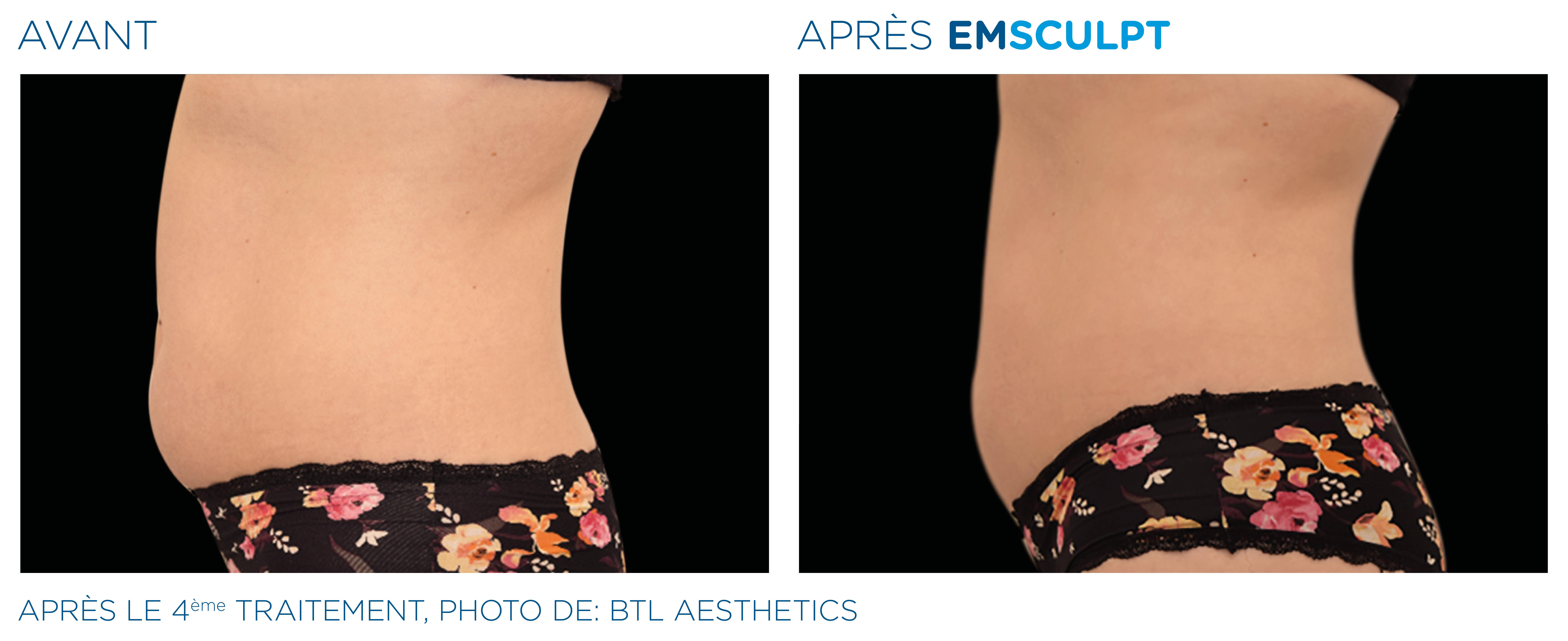 Emsculpt_PIC_Ba-card-female-abdomen-025_FR100