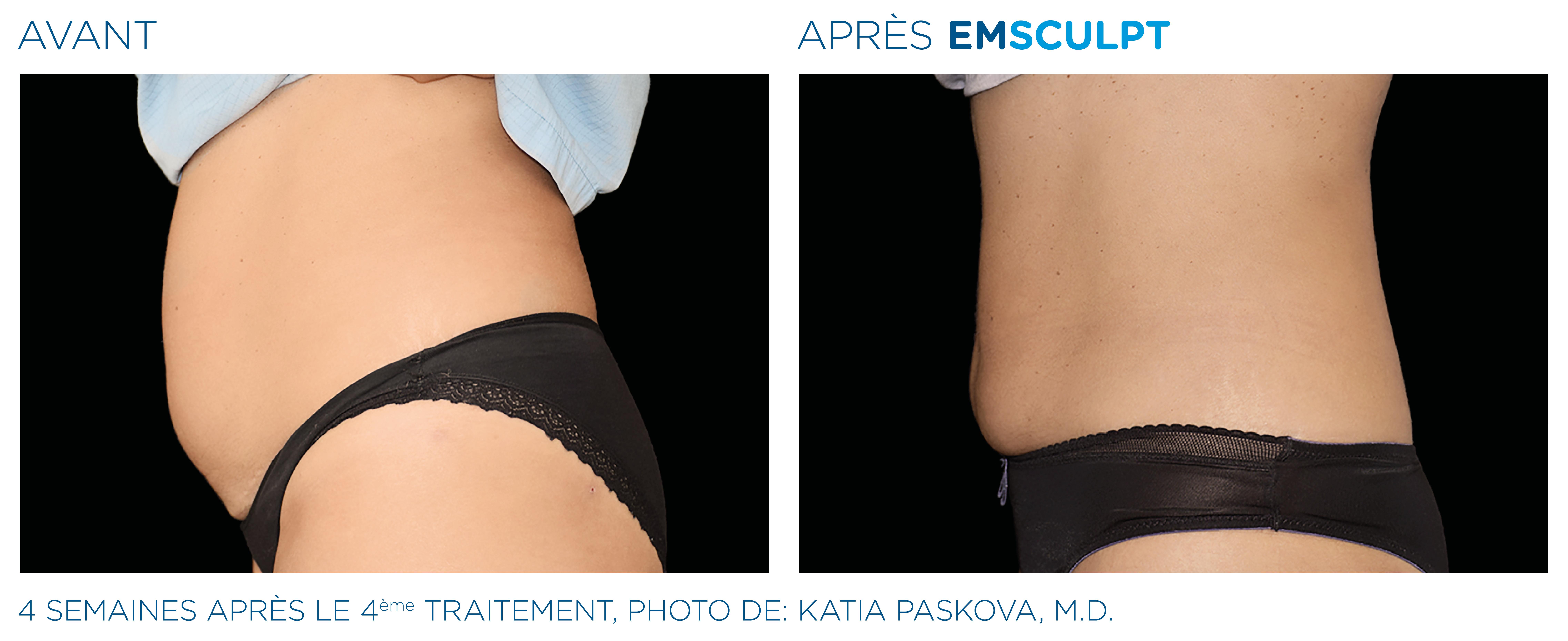éliminer la cellulite de l'abdomen
