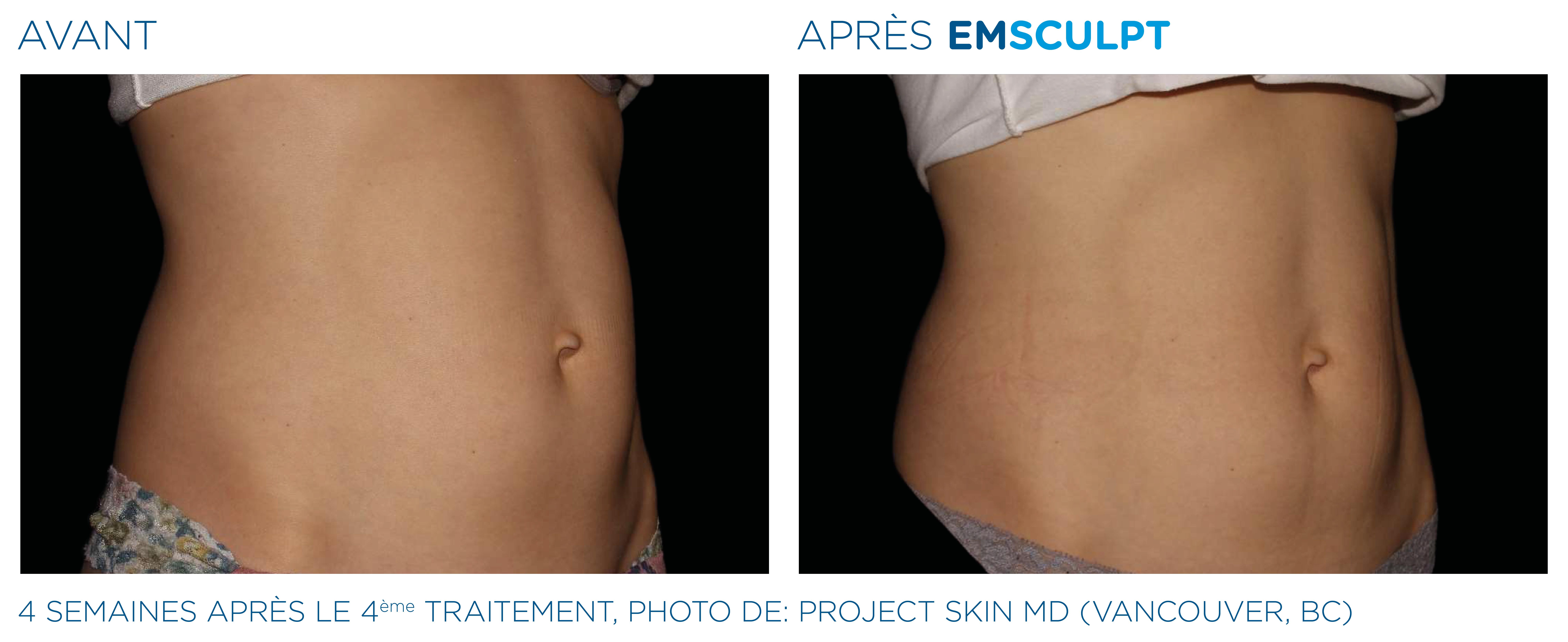 Emsculpt_PIC_Ba-card-female-abdomen-047_FR100